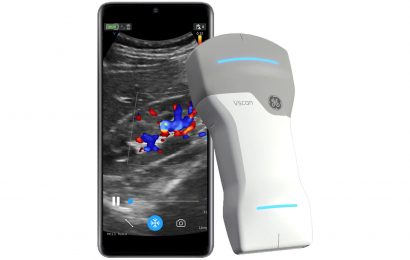 GE Healthcare launches new wireless hand-held ultrasound as CEO eyes growing market
